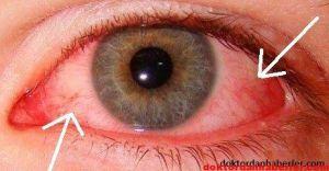 Adenoviral Keratokonjuktivit - Kanlı Göz