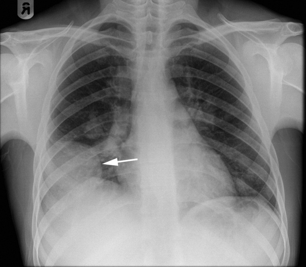Behçet Sendromlu bir hastada hemoptizi görüntüsü.