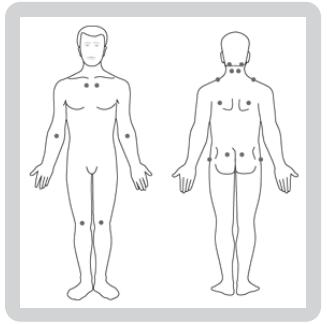 Fibromiyalji hastalığında ağrılı noktaların yerleri - Resmin kaynağı en alttadır.