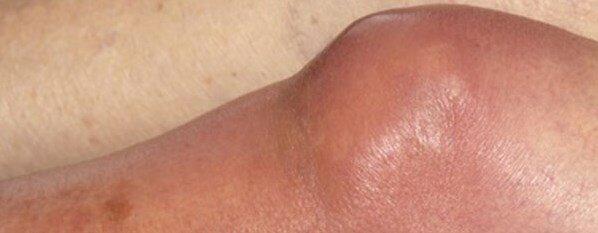 septik artrit nedir