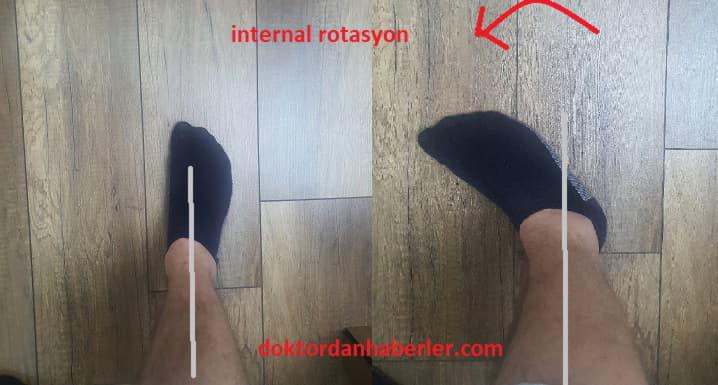 internal rotasyon nedir