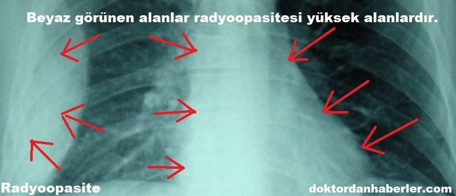 Radyoopasite ile ilişkili görsel.
