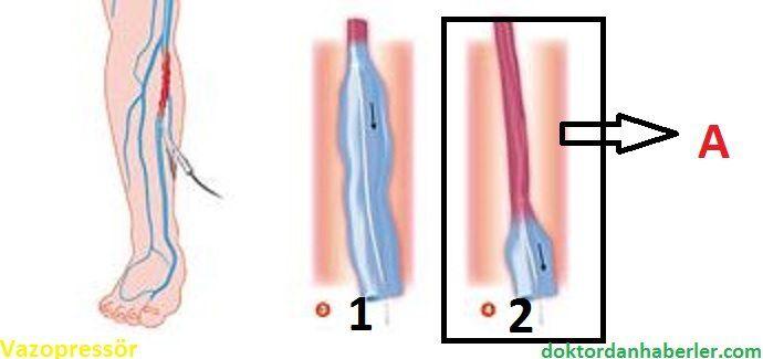 Vazopression eylemini simüle eden görsel