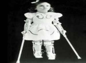 poliomyelit-deformiteleri