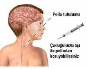 poliomyelit-klinik-donemleri