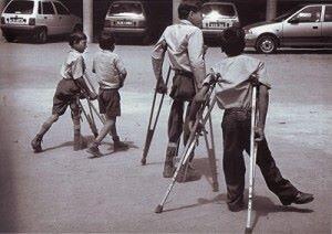poliomyelit-tedavisi