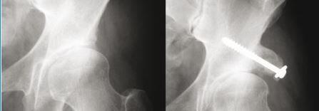 shelf-artroplasti-nedir