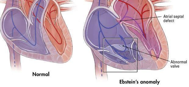ebstein-anomalisi