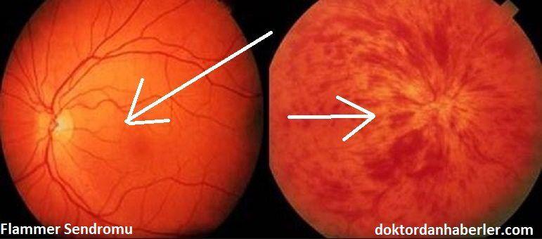 Flammer Hastalığı ile ilişkili görsel.