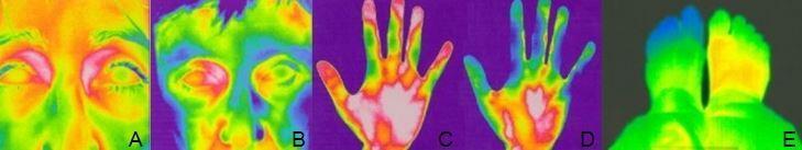 Flammer Sendromu ile ilişkili görsel.