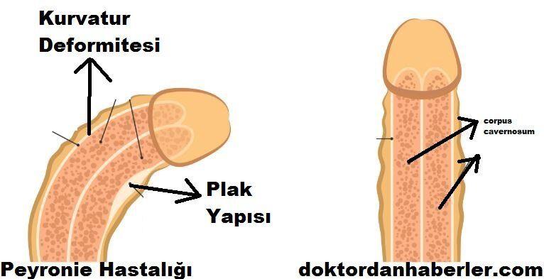 peyronie-hastaligi-tedavisi