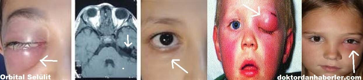 Orbital enfeksiyonlar ile ilişkili görseller görülmektedir.