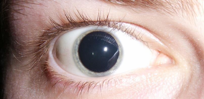 wsi imageoptim pupil dilatasyonu
