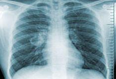 tuberculosisssssssss