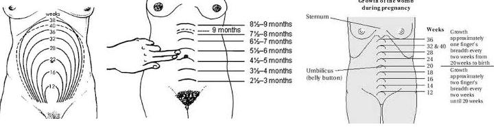 makrozomi hastalığında fundus yüksekliği ölçülmesi