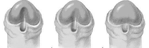 hipospadias belirtileri