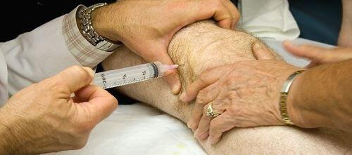 intrartikuler sivi birikimi tedavisi