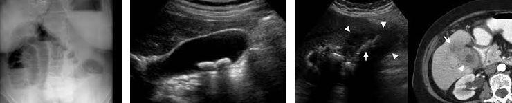 safra tasi ultrason goruntuleri