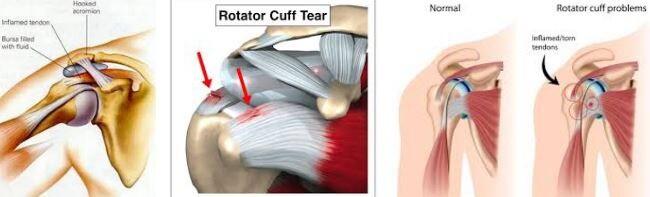 rotator cuff zedelenmesi