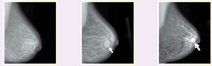 memede paget hastaligi mamogram