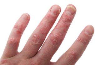 psoriatik artrit