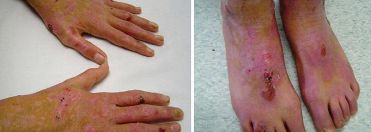 epidermolizis bulloza bitkisel tedavisi