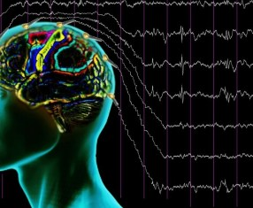 lennox gastaut sendromu nedenleri