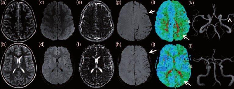 ailesel hemiplejik migren