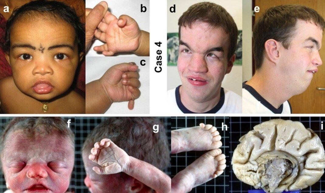 Akrokallozal Sendrom nedir