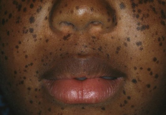 leopard sendromu tedavisi
