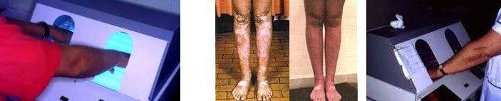 puva tedavisi hangi hastaliklarda kullanilir