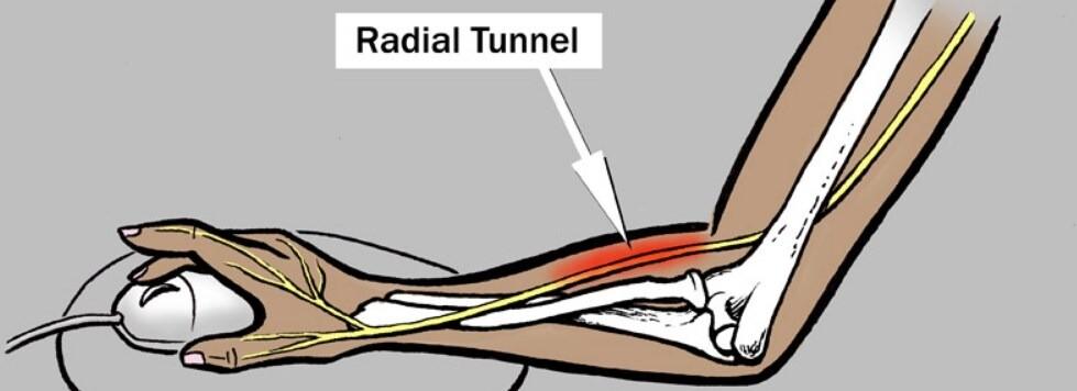 radyal tunel sendromu ve radyal sinir sikismasi