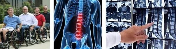 spinal kord yaralnmasi tedavisi
