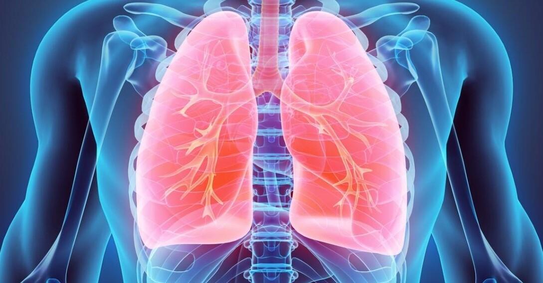 Akut Respiratuar Distres Sendrom nedir