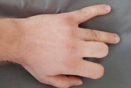 eklem ağrılarına bakan bölüm