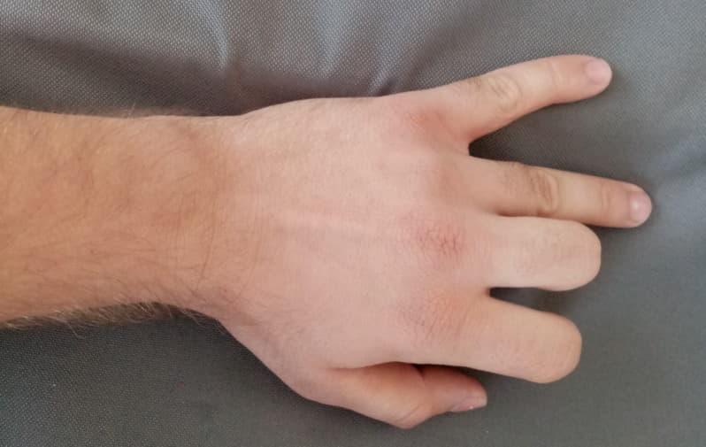 eklem ağrına bakan poliklinik