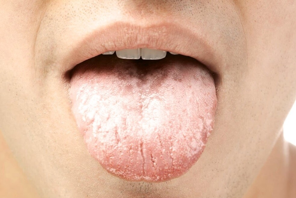 Фото при кандидозе полости рта