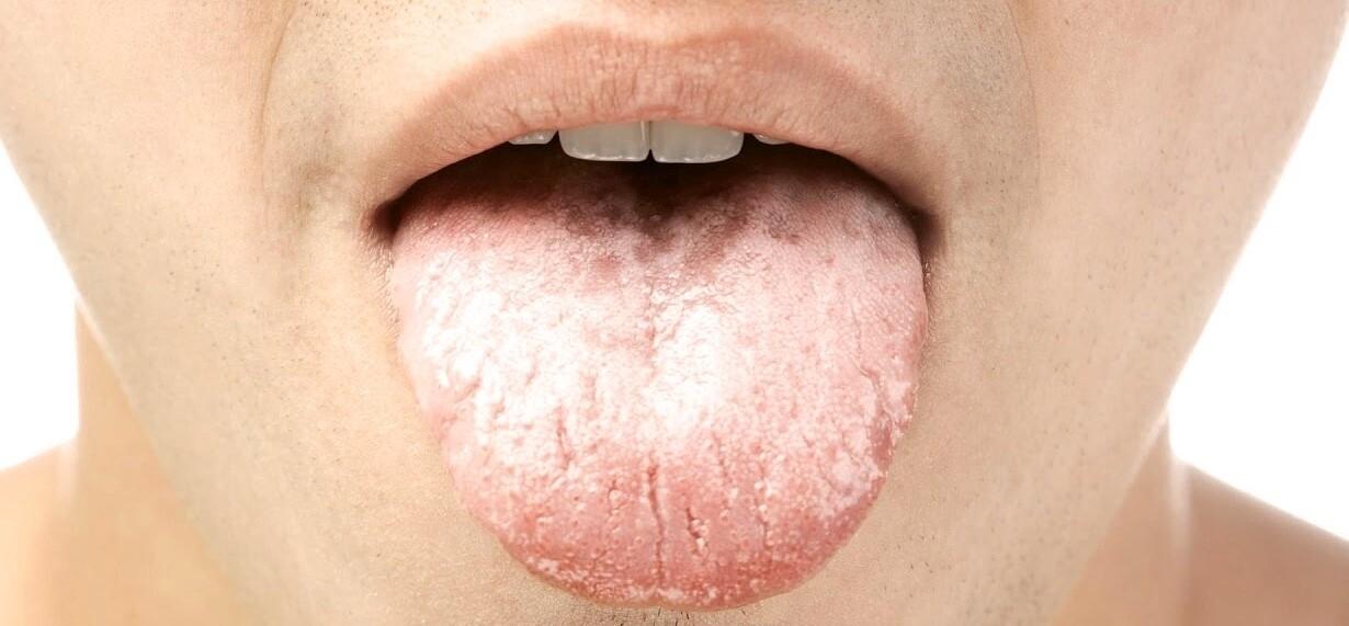 dilde beyazlik nedenleri