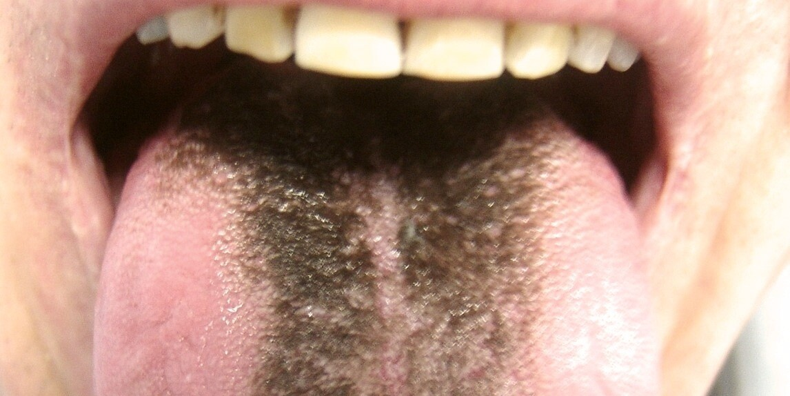 Hairy black girls free pics