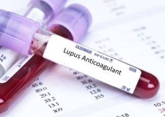 lupus antikoagulani