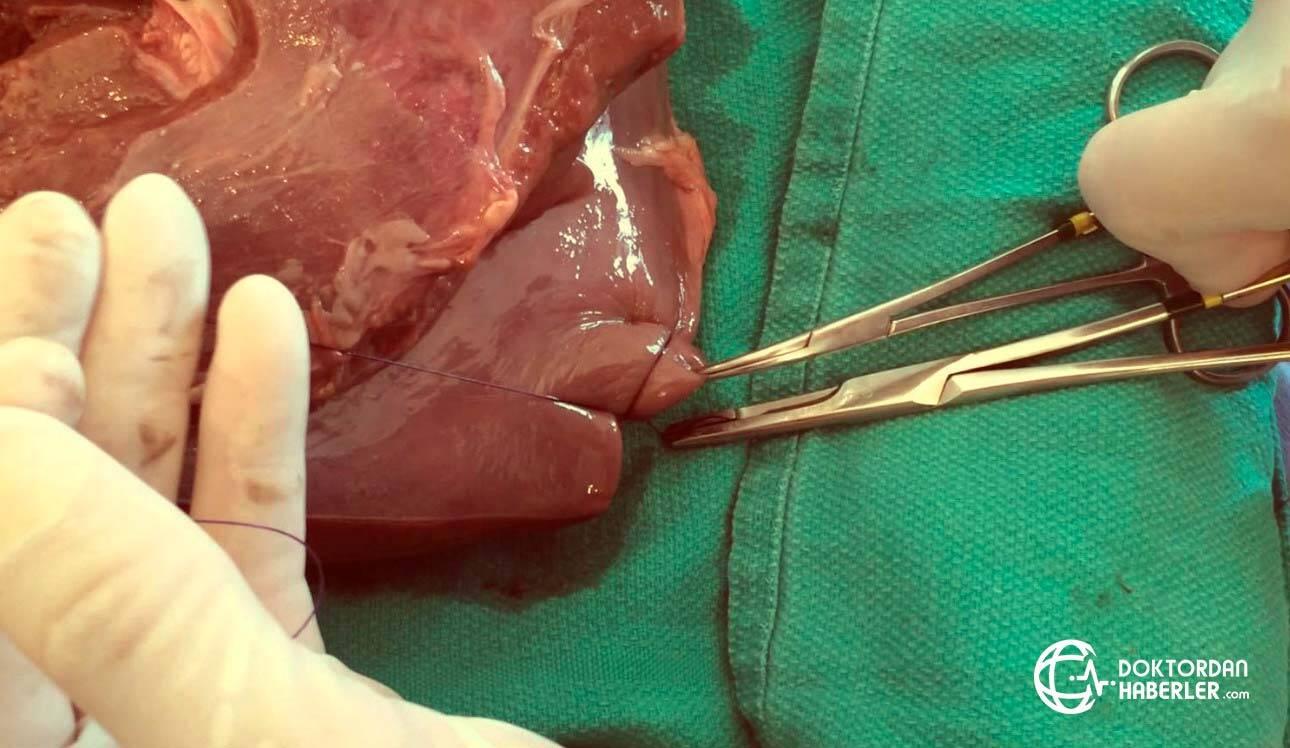 Karaciğer biyopsisi