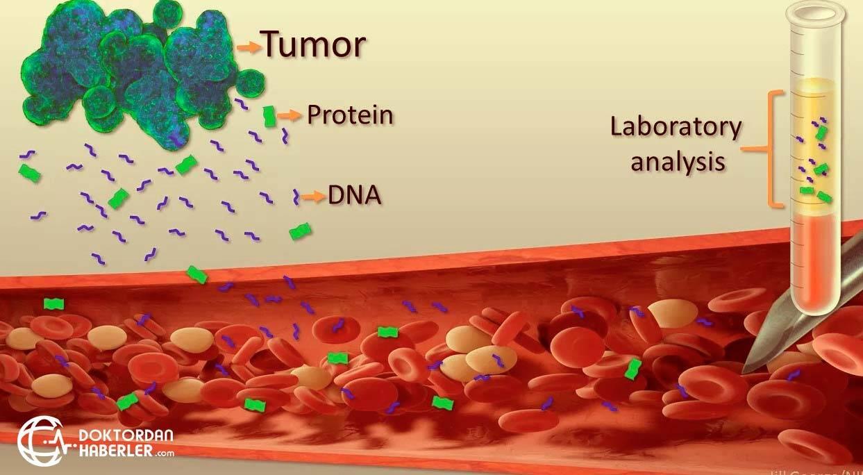 Eğer idrar içindeki bir protein bulunursa, ne demektir